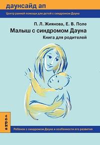 Малыш с синдромом Дауна